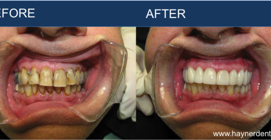 Restorative Dentistry – Before and After